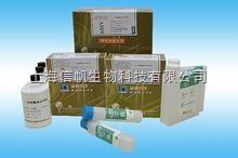 人白细胞介素27 (IL-27)ELISA试剂盒 检测原理是什么,现货促销