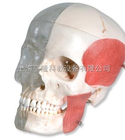 新颅模型-透明与 骨颅结合,8部分
