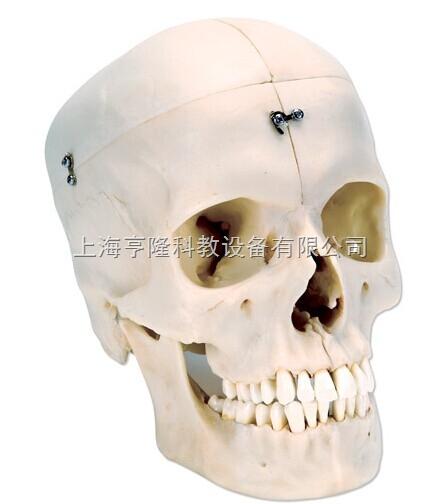 新颅模型- 骨半颅,4部分