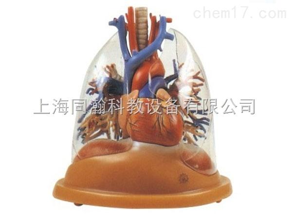 显示心脏和大血管,透明肺,气管,支气管树以及肺段支气管等结构.