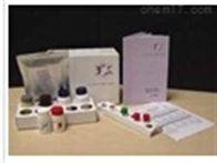 小鼠角质转谷氨酰胺酶(TGM1)检测试剂盒