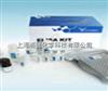 人ELISA定量检测试剂盒简单操作